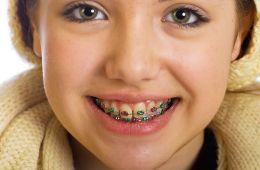 Ortodonzia del piccolo paziente