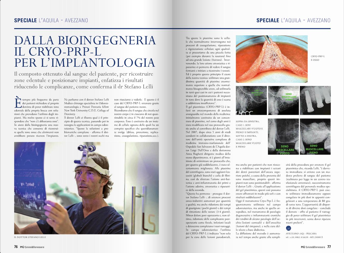 Dalla bioingegneria il CRYO-PRP-L per l'implantologia