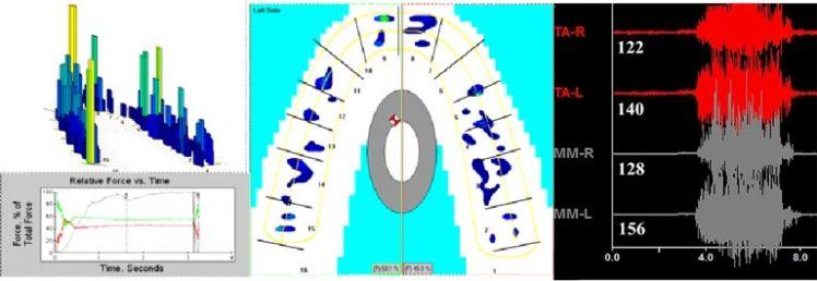 Analisi T-scan e EMG su ortotico