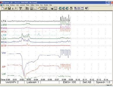 Analisi poligrafica a bocca vuota
