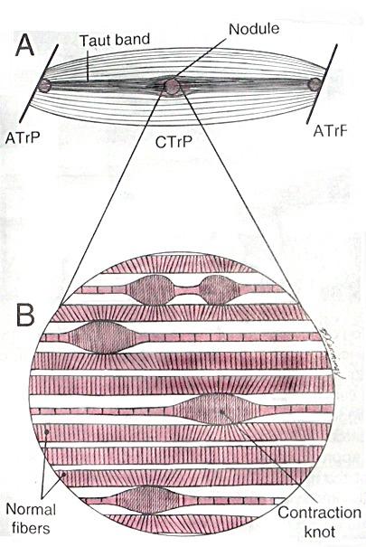 Cefalee tensive e disordini cranio-mandibolari