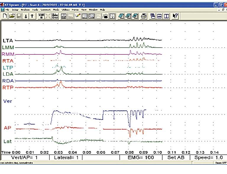 Analisi poligrafica con ortotico neuromuscolare