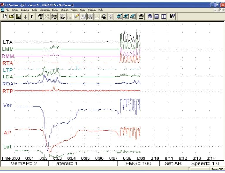 Diagnosi poligrafica della deglutizione atipica