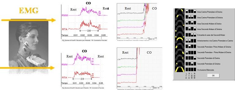 EMG di lavoro e dettaglio termpi di attivazione elettromiografici