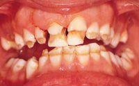 Diffusa Ipoplasia dello smalto dentario in soggetto adulto
