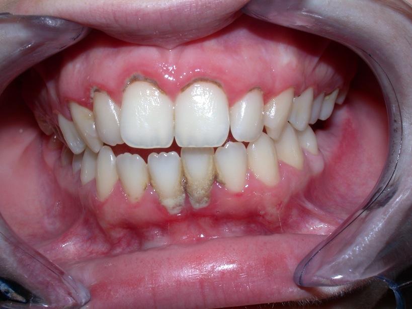 L'igiene orale professionale