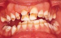 Le anomalie strutturali dei denti