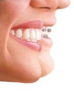 Invisalign: riprendiamoci il sorriso