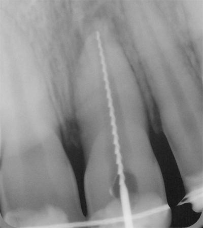 Traumi dentali: come comportarsi