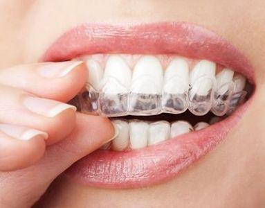 Ortodonzia con apparecchio invisibile