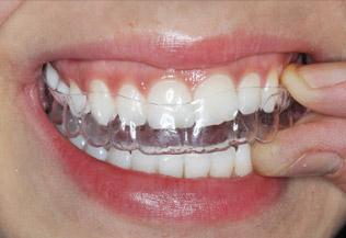Apparecchio invisibile - mascherine trasparenti per raddrizzare i denti