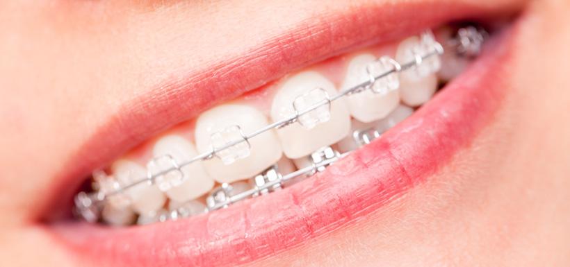 Ortodonzia con apparecchio fisso