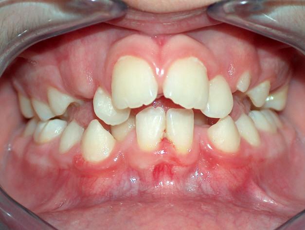 Panoramica sulle tematiche inerenti l'ortodonzia