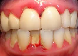 Test e analisi per la parodontite (piorrea)