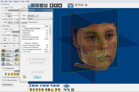 cefalometria 3D DOLPHIN imaging