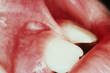 Quello che vorresti sapere sul Laser dentale