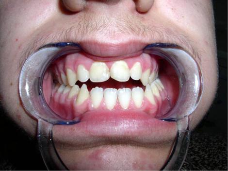 Macroglossia, deglutizione atipica e respirazione orale non curate
