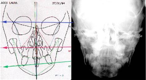 Cefalometria postero anteriore con evidente cross a sx