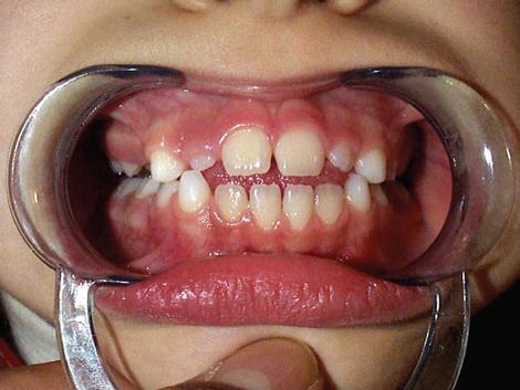 Open e interposizione della lingua in dentatura mista