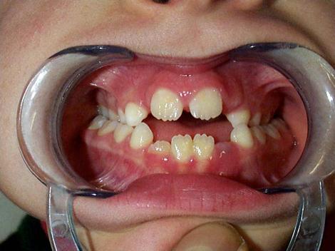 Morso aperto, terza classe e cross bilaterale con postura bassa della lingua in bambino in età evolutiva