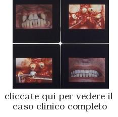 Diapositive di Interventi del Dr. Gustavo Petti: Parodontite Grave, Prima, Durante, Dopo la Terapia Parodontale Riabilitativa Completa e Complessa