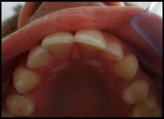 Causa affollamento dentale, all'età di 10/11 anni sono stato sottoposto a cure ortodontiche, ma....