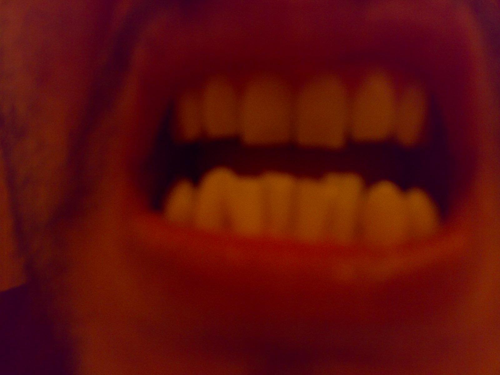 Ho 30 anni e vorrei correggere le arcate dentarie inferiore e superiore