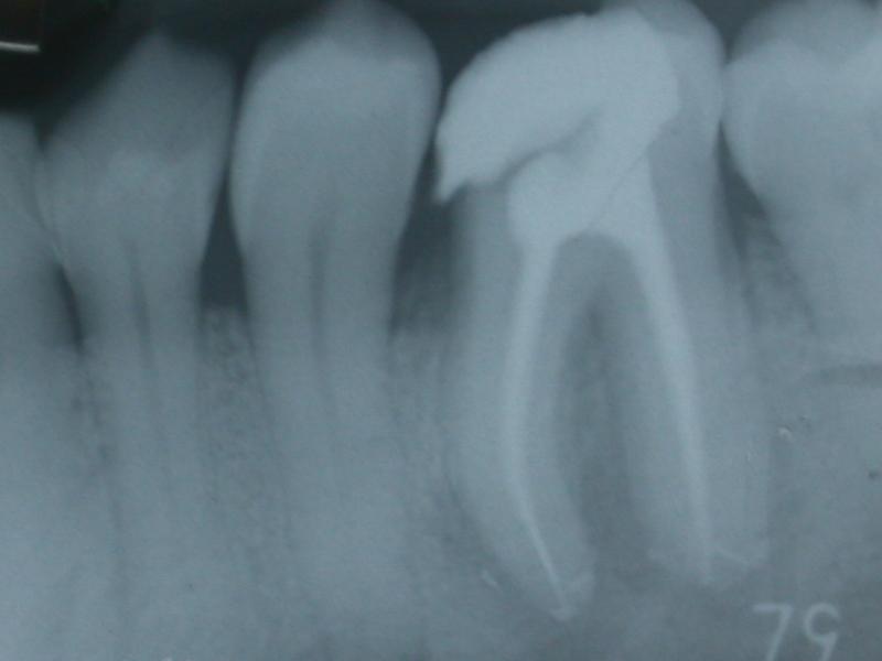 Terapia Canalare di un molare inferiore con 5 canali