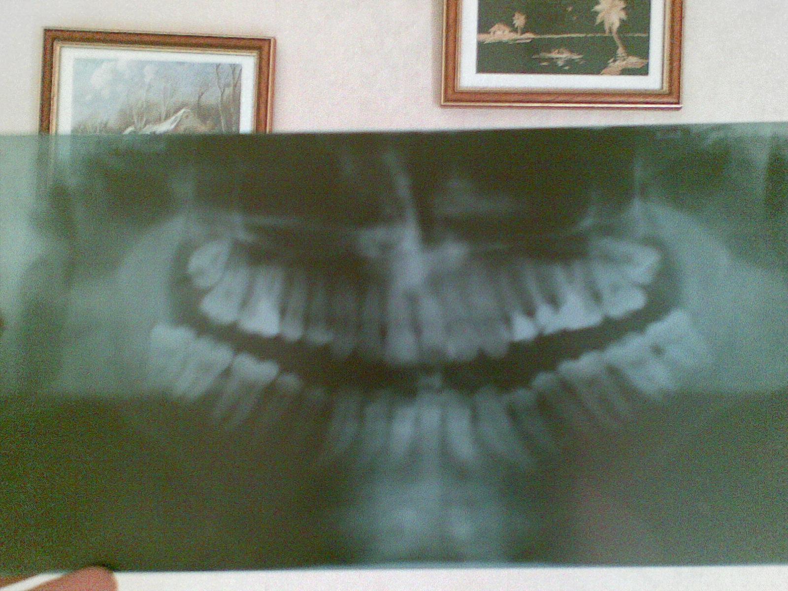 Ho cominciato ad avere dei lievi dolori a diversi denti.