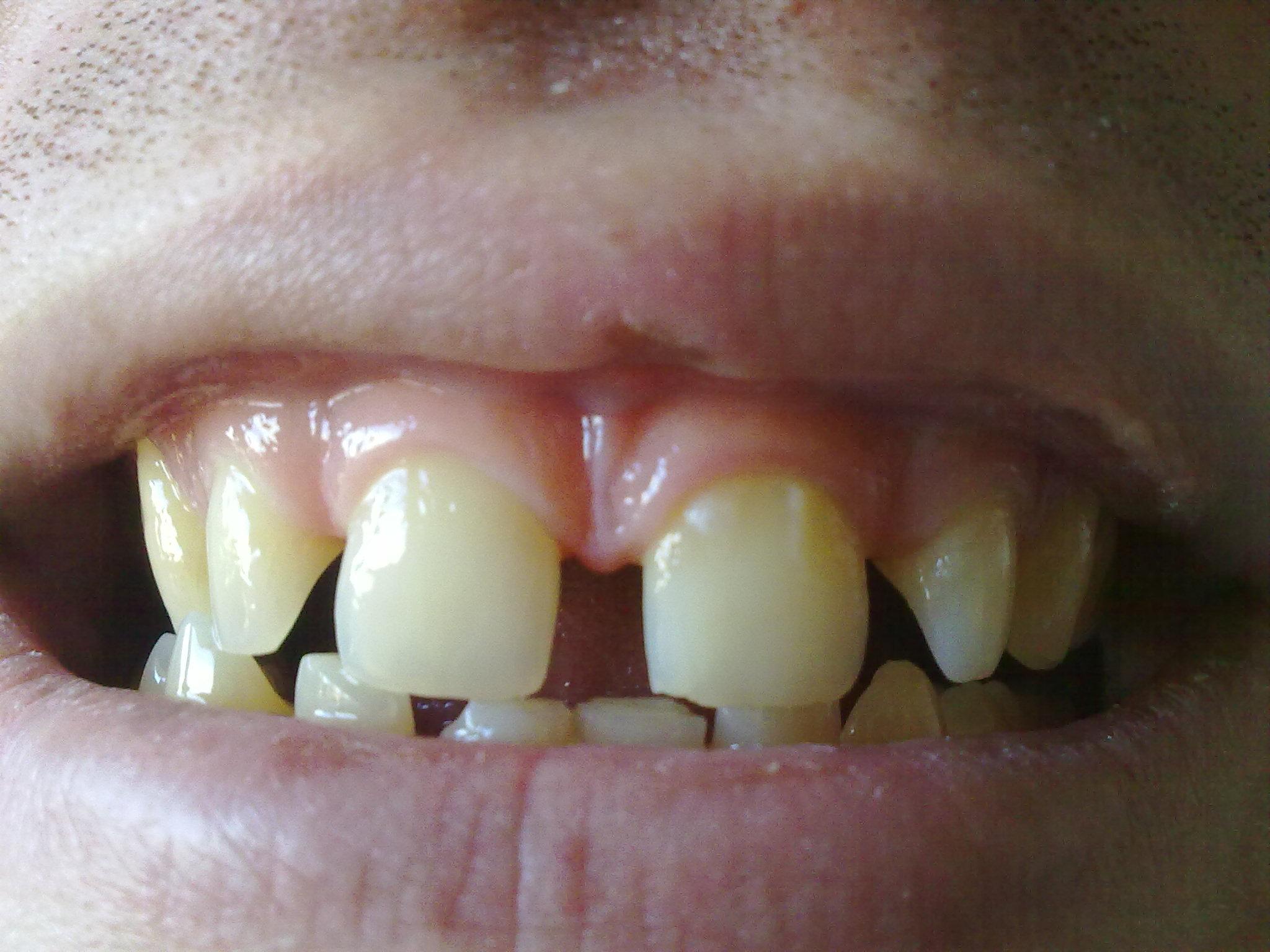Ho 25 anni e presento i denti abbastanza spaziati
