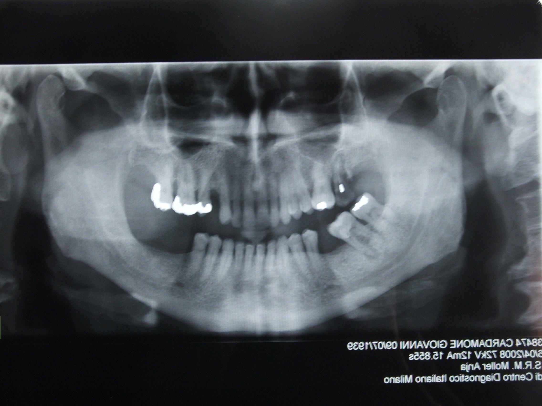 Seguito domanda del 19/01/2009: Sono cardiopatico in terapia farmacologica. Ho controindicazioni all'implantologia?