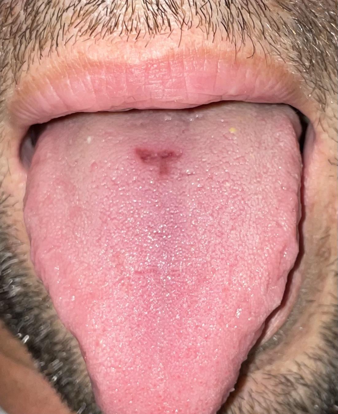 Circa 3 settimane fa ho notato una macchia al centro della lingua