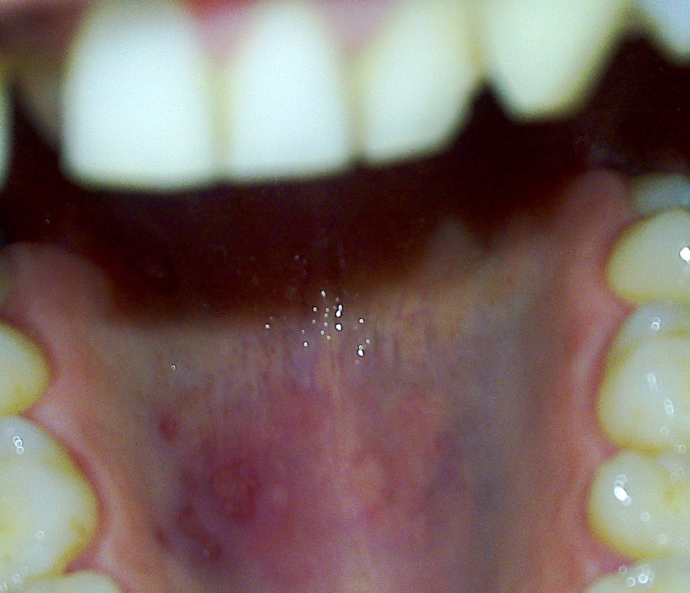 Ringraziamenti e seguito alla domanda: Da 2 giorni ho sotto il palato duro una zona rossa con all'interno piccole bolle