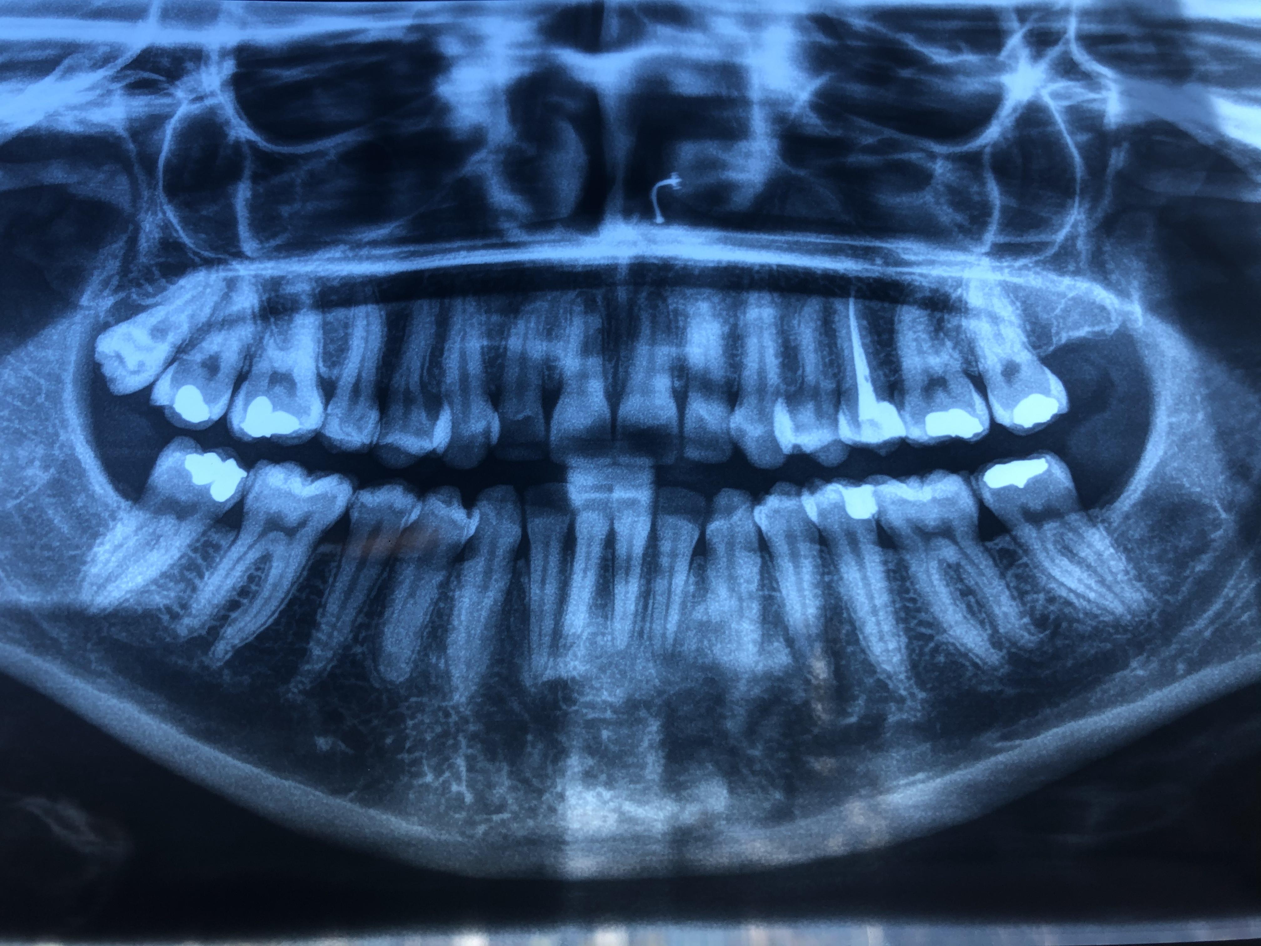 Dolore dente devitalizzato da anni