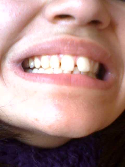 Esiste una soluzione alternativa per il mio problema dentale