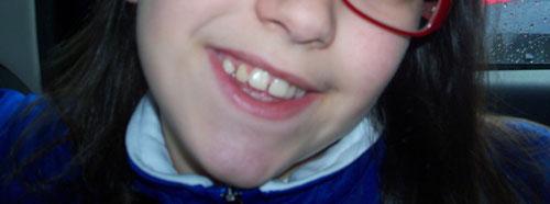 Ho una figlia di 11 anni che ancora sta cambiando i denti