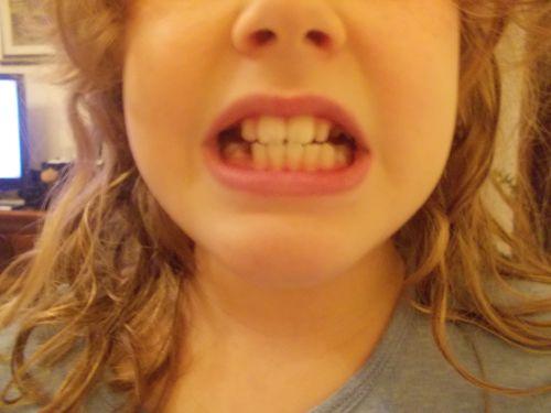Mia figlia di 10 anni è in cura da quando ne aveva 8 per il problema dell'arcata superiore pronunciata