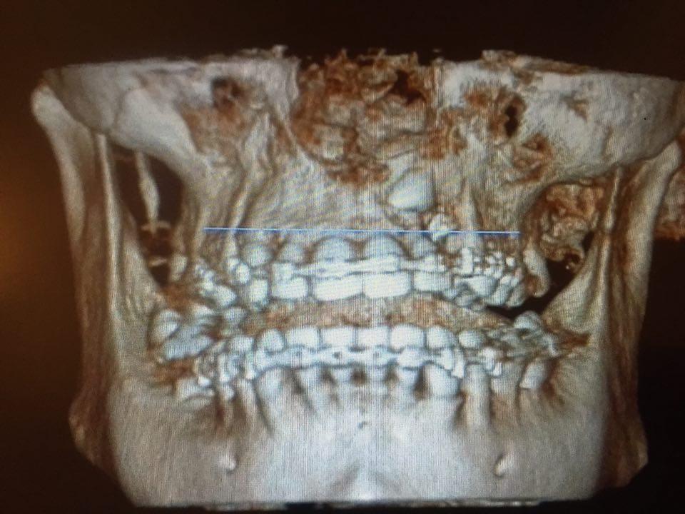 In Aprile 2015 ho estratto un canino (23) incluso extra osseo vestibolare