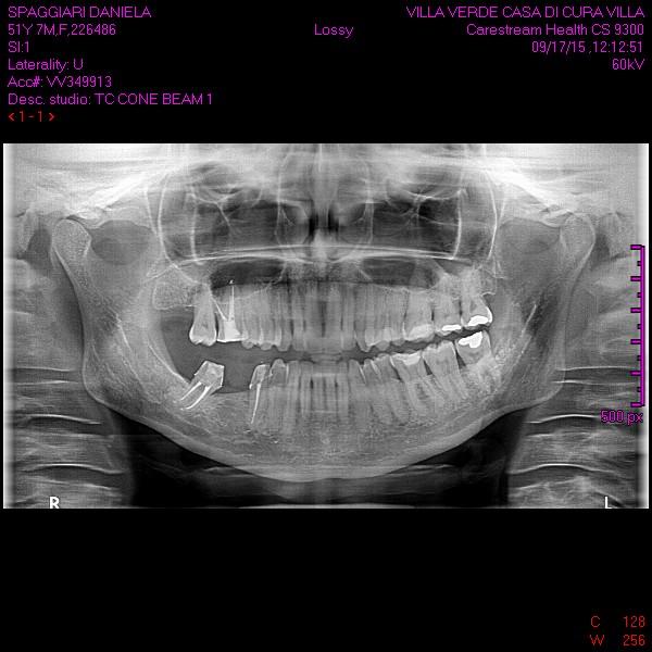 Questa avulsione con innesto osseo va eseguita preferibilmente in ambiente ospedaliero?
