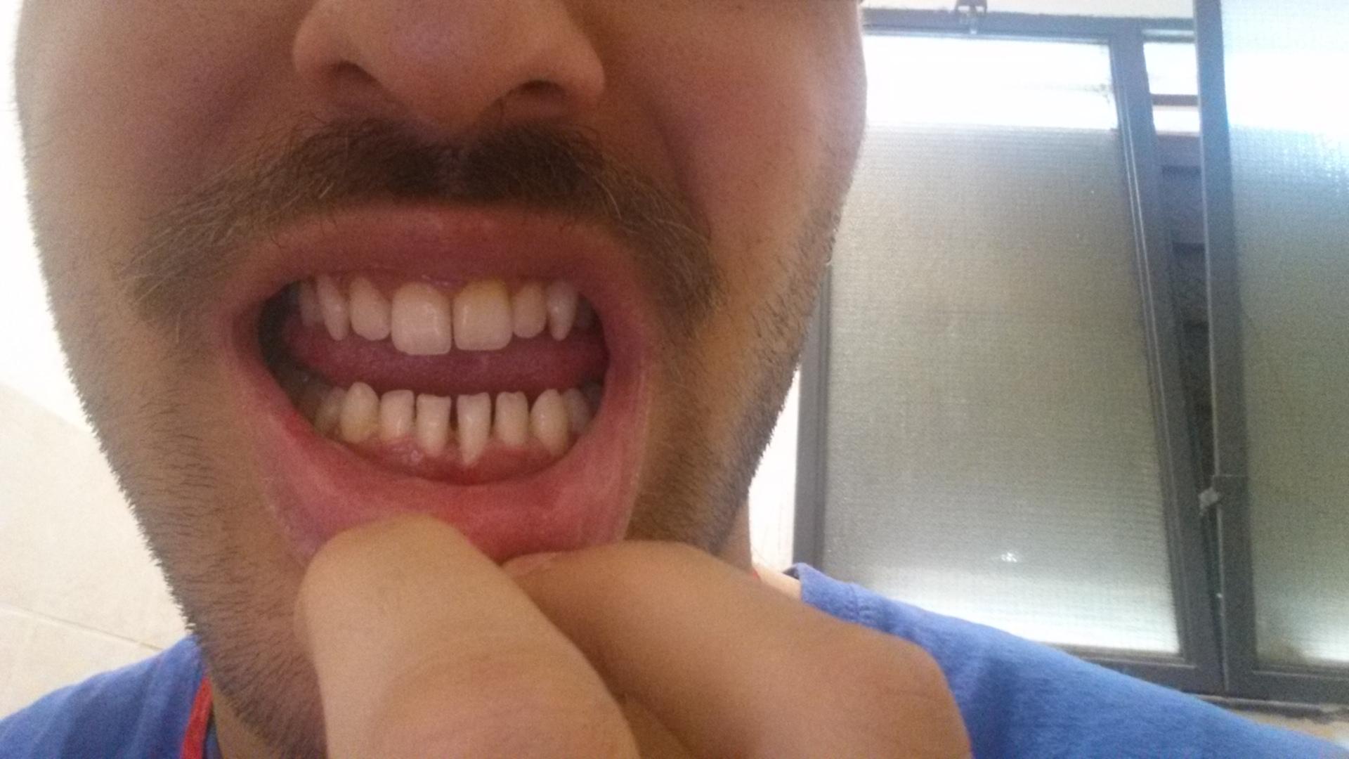 Da qualche anno soffro di retrazione gengivale ai denti inferiori