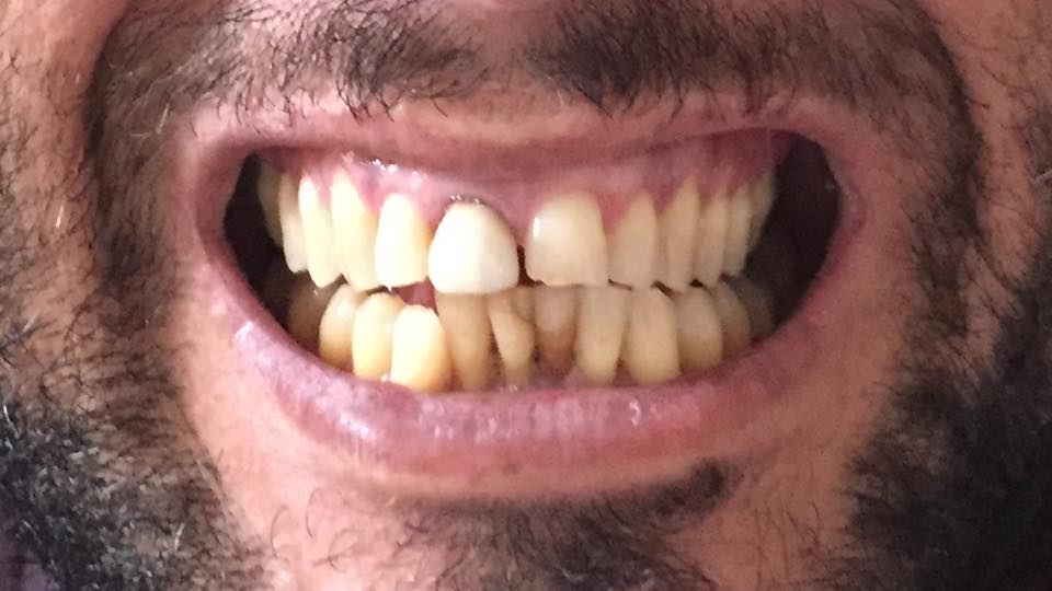 E' possibile migliorare la mia situazione estetica nonostante la parodontite?