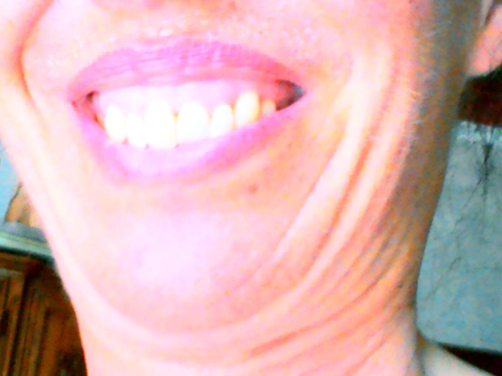 Il mio sorriso potrei correggerlo riattaccando il frenulo?