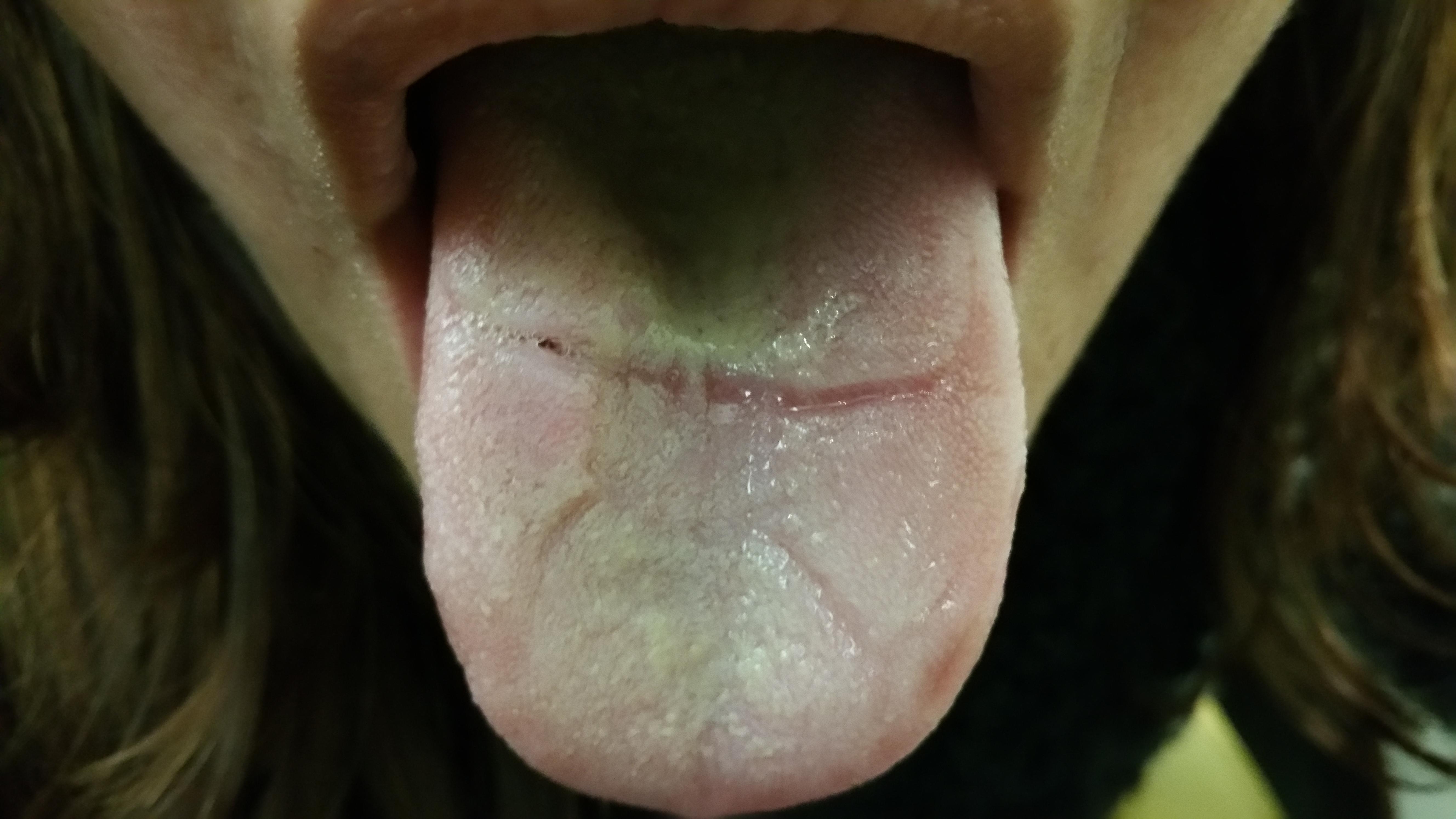 è normale il taglio sulla lingua causato dall'espansore palatale?