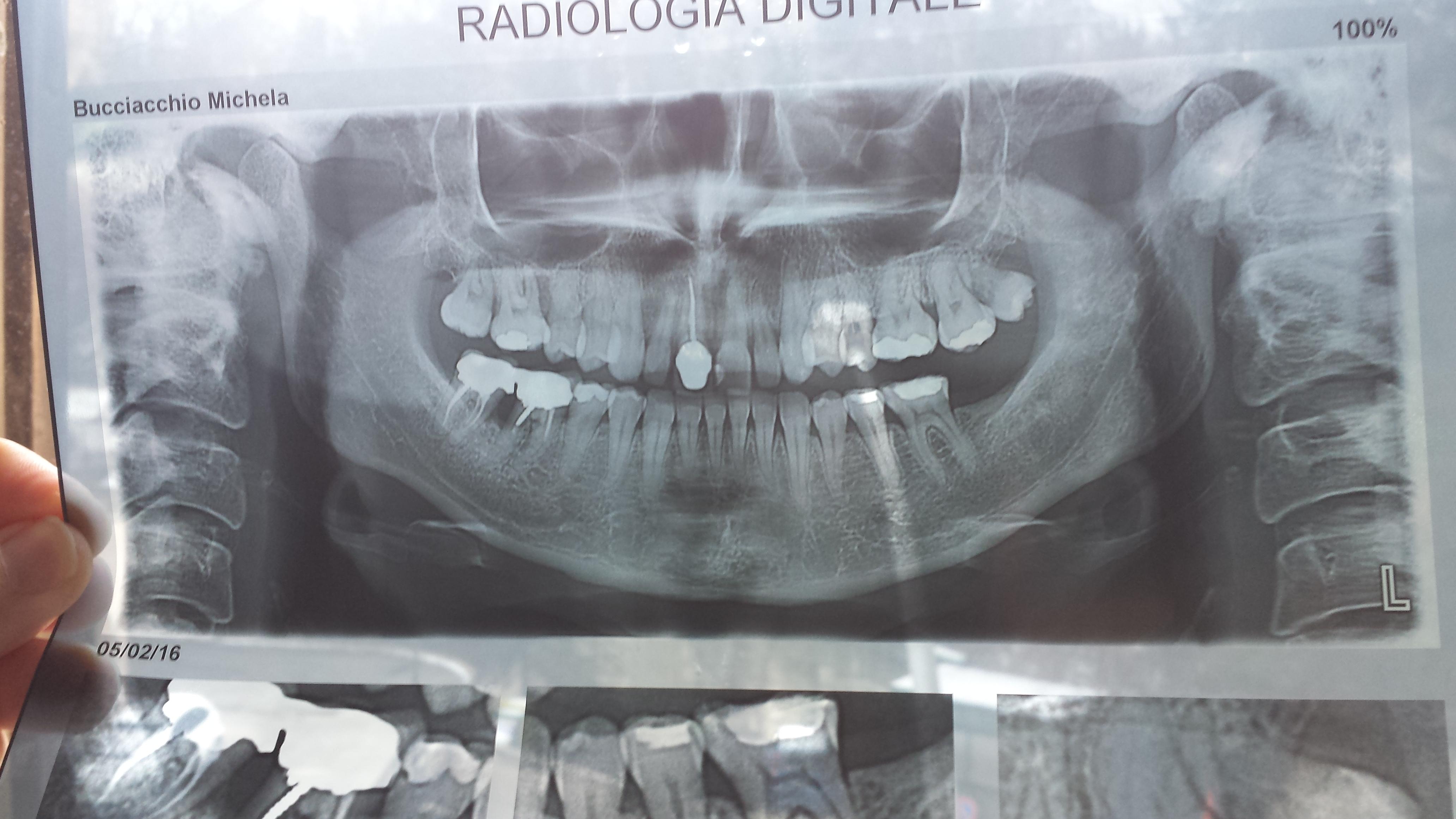 Ho i 2 molari dell'arcata inferiore destra devitalizzati ed incapsulati da una corona unica da 15 anni