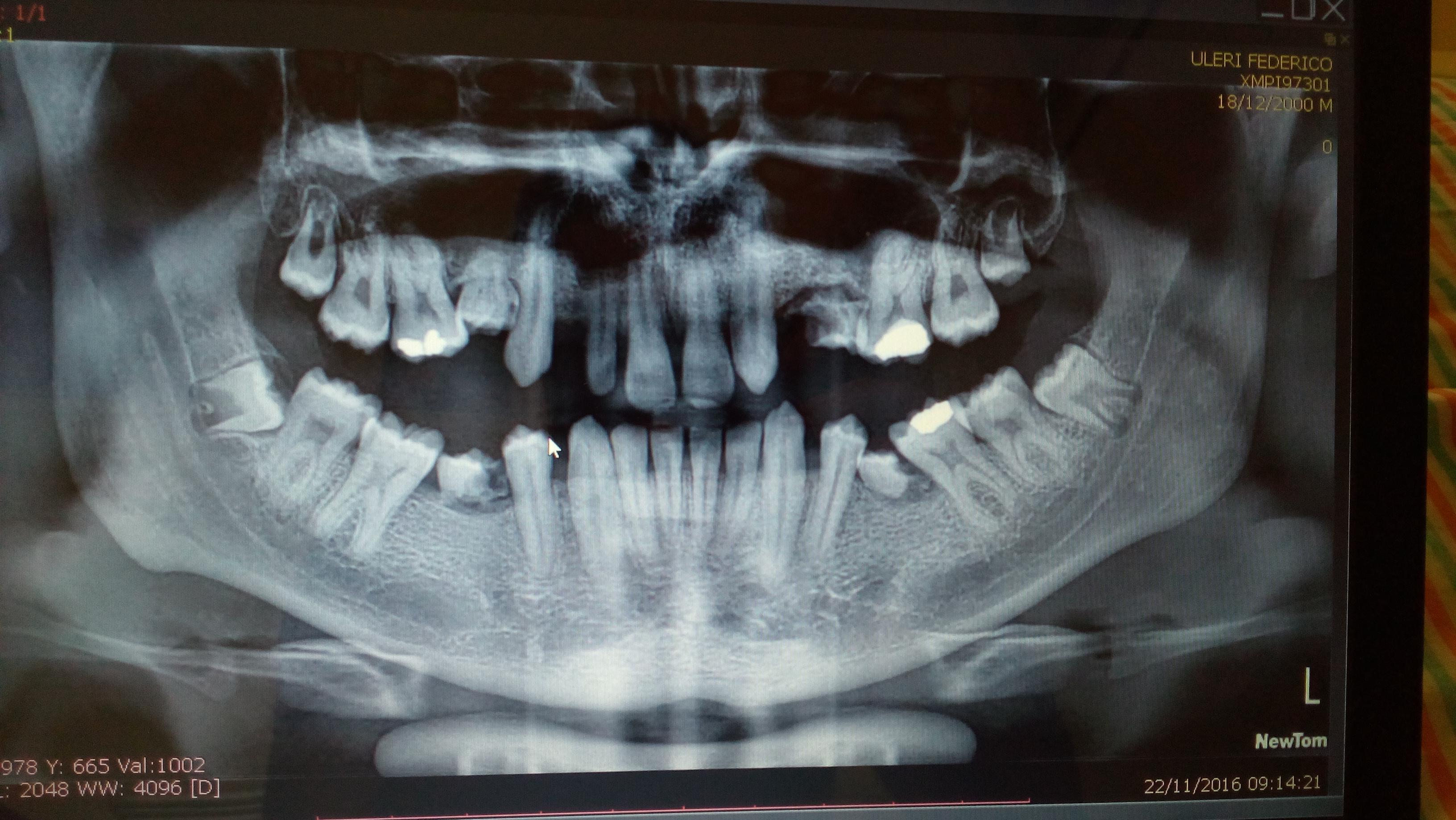 E' normale l'assenza di tutti i premolari sul palato superiore?