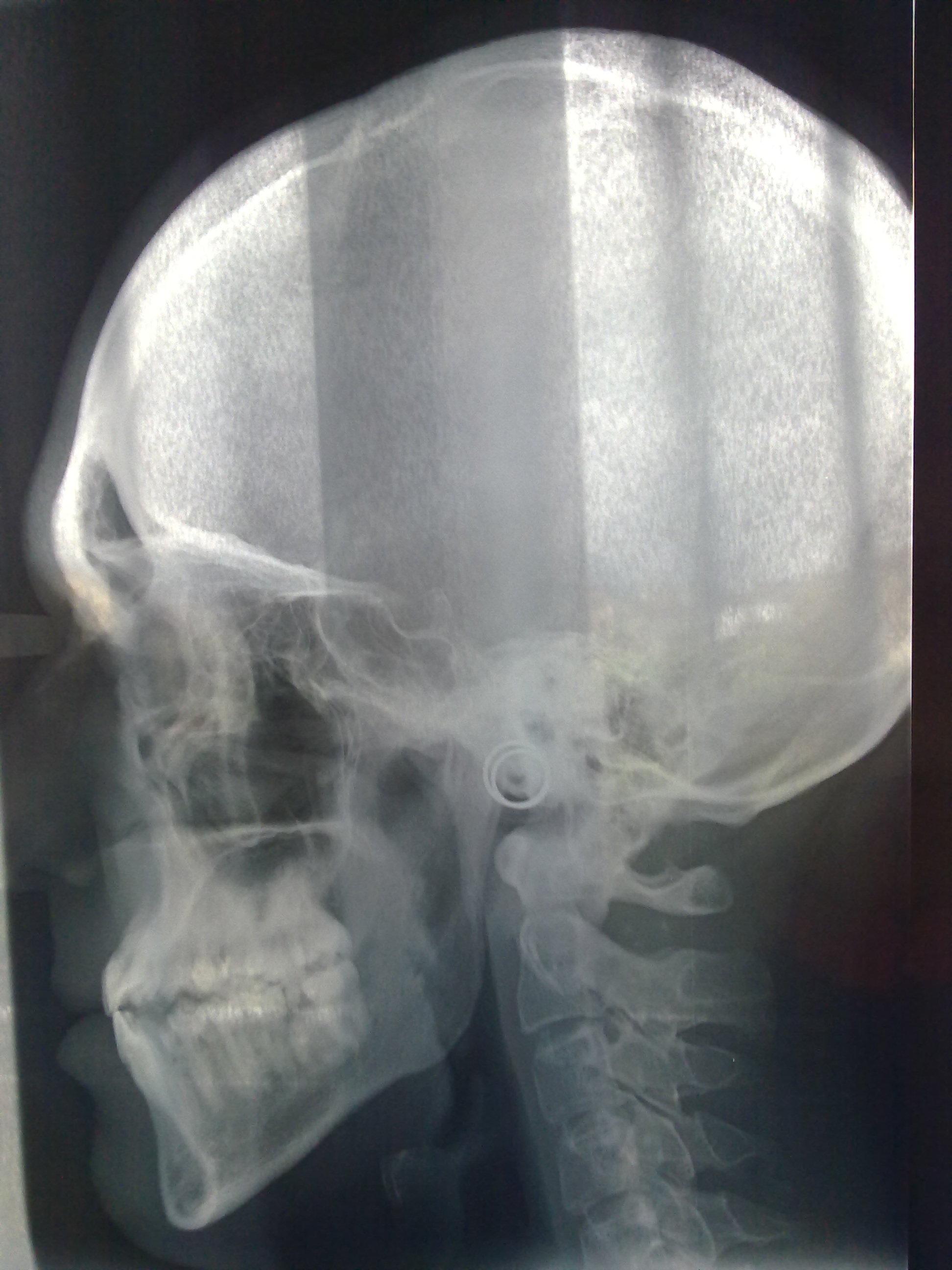 Ho seguito una cura ortodontica - durata ben 7 anni, ma....
