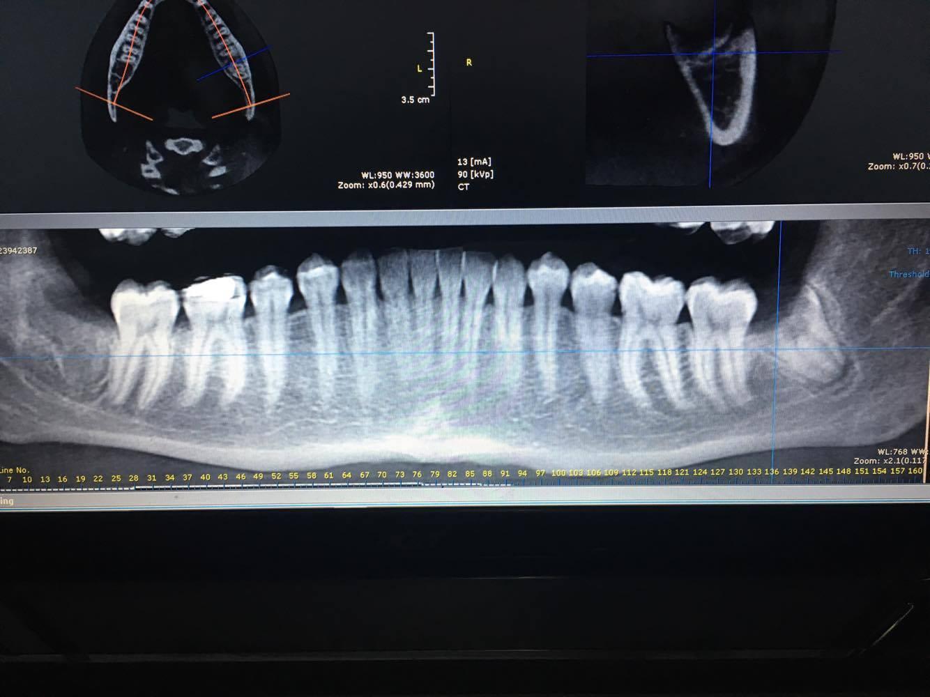 Ad Agosto ho tolto un dente del giudizio