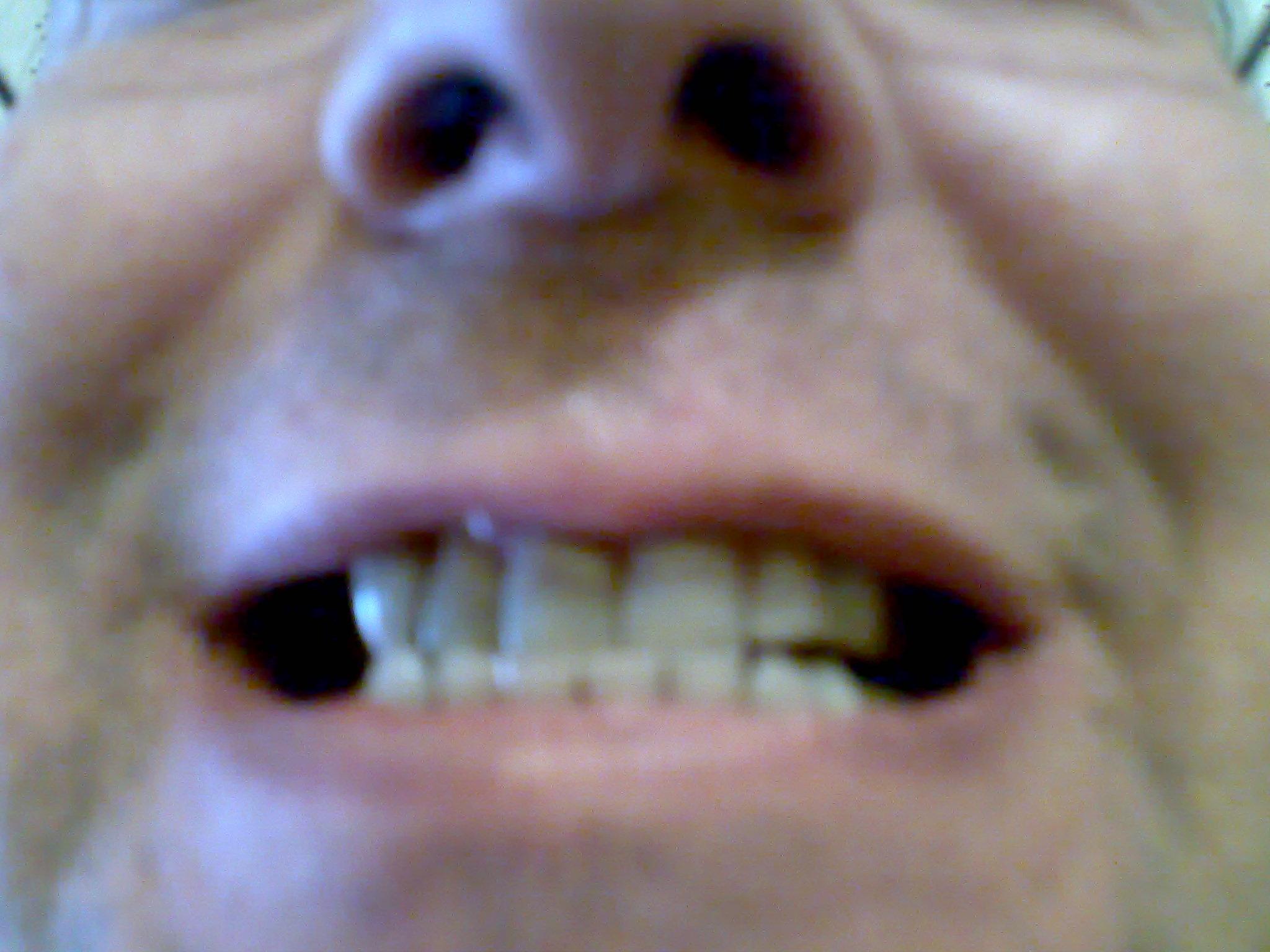 Scurimento dei denti a causa di medicinali e possibilità di sbiancamento o altro.