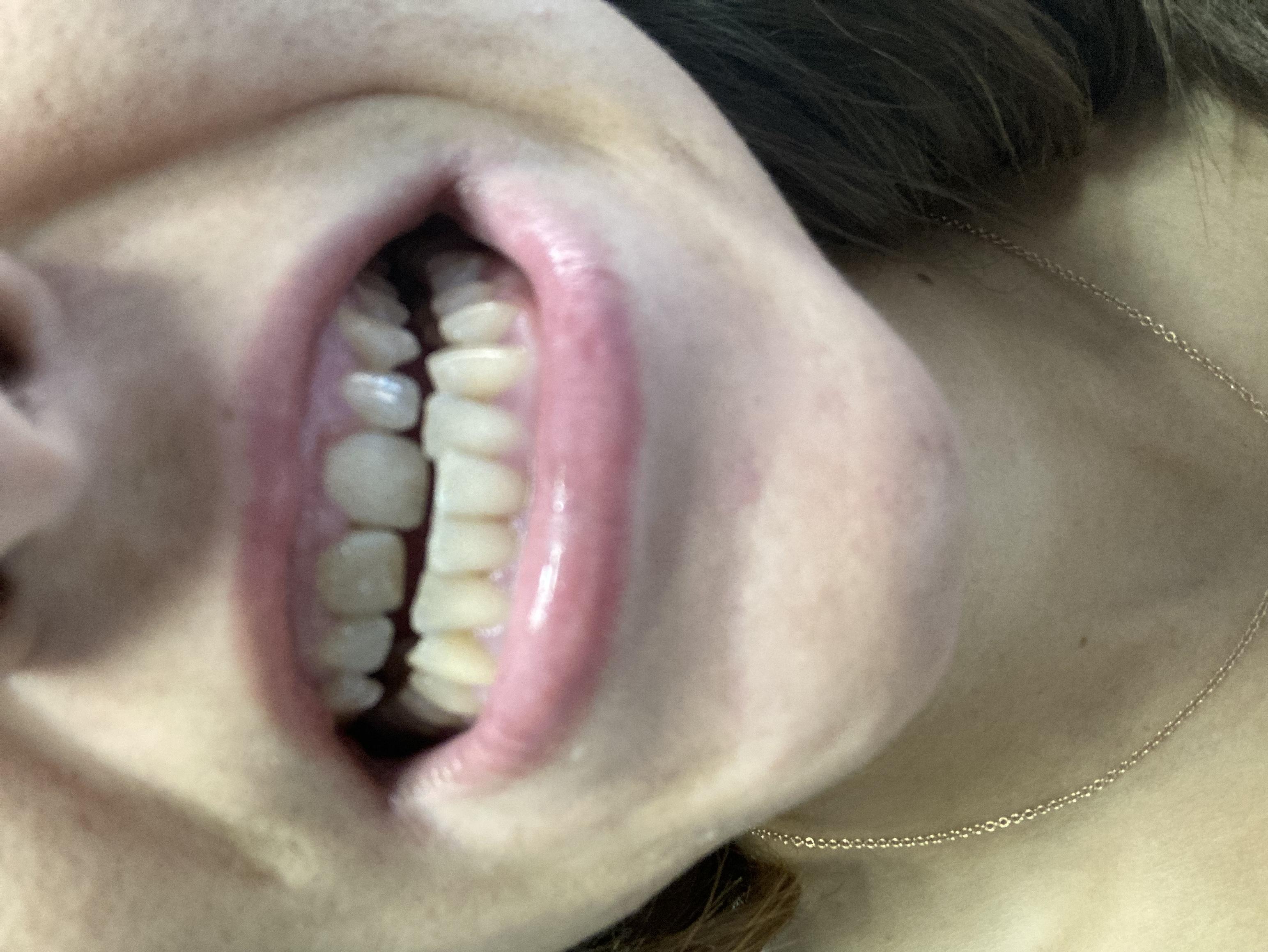 È possibile ripristinare la lunghezza con un apparecchio ortodontico?
