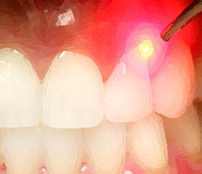 1laser-dentale-dentista-catania-bennici.jpg